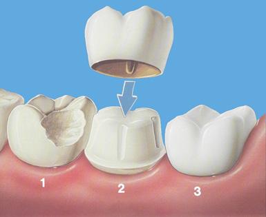 Протезирование зубов.