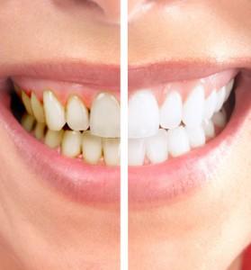 Профессиональная гигиена зубов.