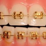 Gold_Braces