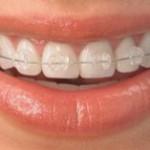 Sapphire__brackets_thumb_medium220_0