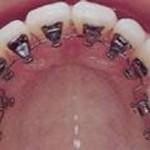lingual-braces1