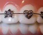 metal_braces4