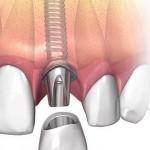 nesemnoe-protezirovanie-na-implantah