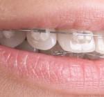 plastic-braces